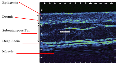 dermatology skin through muscle