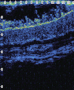 mouse skin scan
